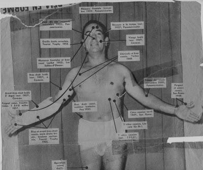 En la imagen, fechada en torno al 1957, Jean Behra las consecuencias de sus múltiples accidentes.